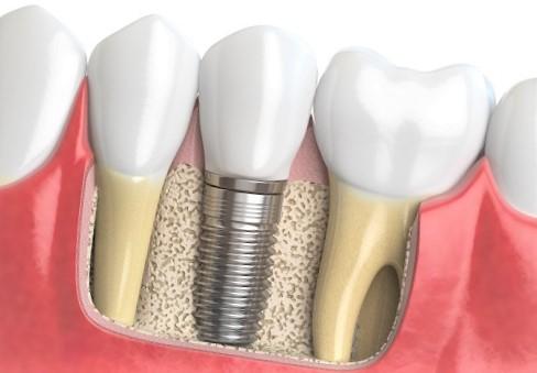 La pose d'un implant dentaire, est-elle douloureuse?